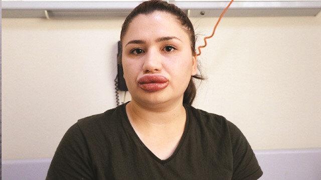 Merve Keleş, Adana'da internette kendisini estetik uzmanı olarak tanıtan kuaför S. G.'ye dudak silikonu yaptırmıştır