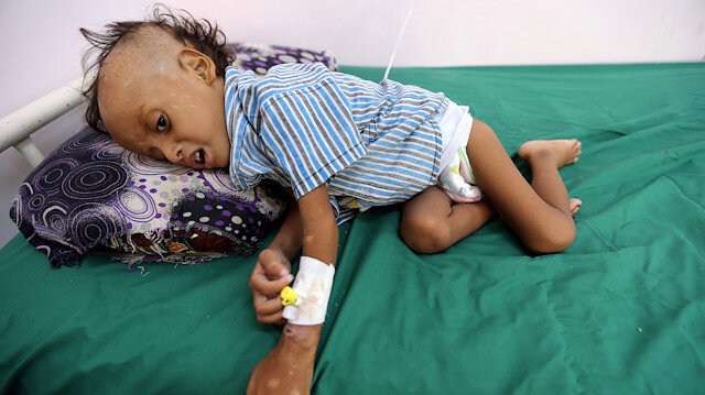 '85,000 children may have died from famine in Yemen'