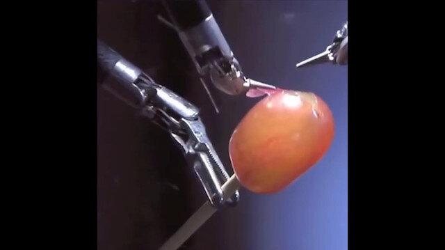 Cerrah robot üzümü ameliyat ediyor