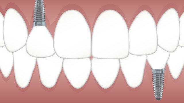 İmplant Diş Tedavisi Kampanyası