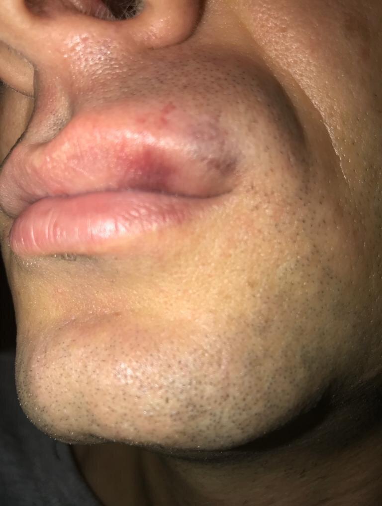 Hakem Çelik'in olayda dudağı patlayarak yaralanınca maç tatil edilmişti.