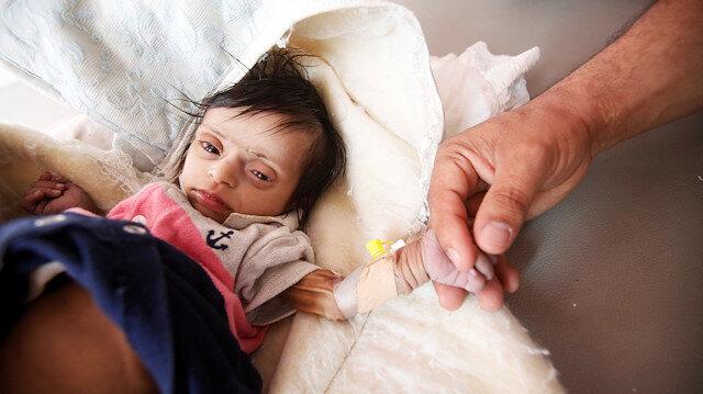 Yemen'de görev yapan bir hemşire iki gün önce yetersiz beslenen iki aylık bebeğin fotoğrafını paylaştı.