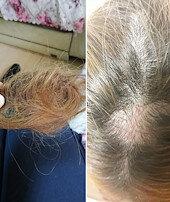 Hasta yakını saçlarını kopardı