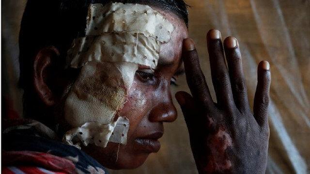 Arakanlı Müslümanların yaraları ve izleri