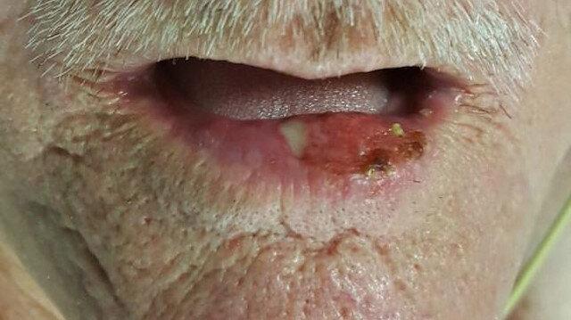 Dudağında 2 buçuk santimetrelik tümör çıktı