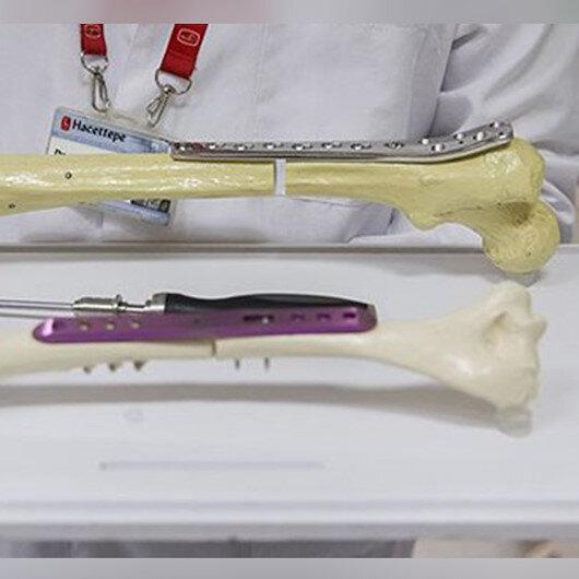 طبيب تركي يحصل على براءة اختراع عن آلية لتطويل العظام