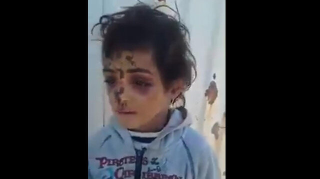 Hava saldırısında tüm ailesini kaybeden Ömer'in sorusu yürek yaktı