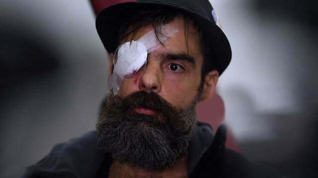 'Sarı Yelekliler' lideri Jerome Rodrigues bir gözünü kaybetti
