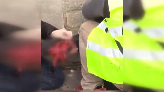 Fransa'da eyleme katılan bir kişinin eli koptu