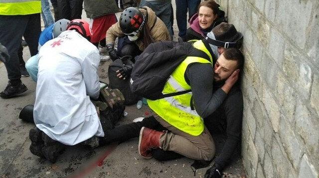 Fransa'daki gösterilerde bir kişinin eli koptu.