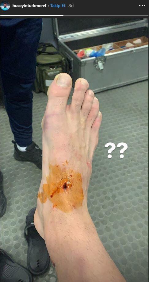 Hüseyin Türkmen'in ayağının üstünde ciddi bir yaralanma olduğu görüldü.