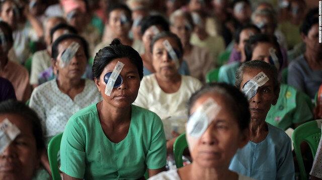 Afrika'da yaklaşık 10 milyon insan katarakt sebebiyle görmüyor.