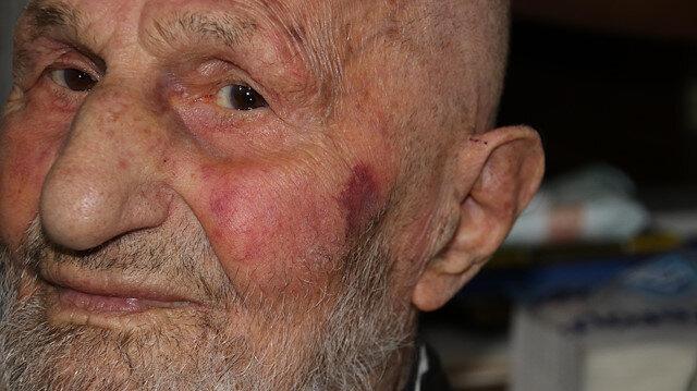 95 yaşındaki amcayı dövdüler