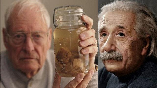 Einstein'ın beynini çalıp 240 parçaya böldü