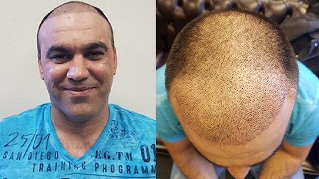 Saç ekimi yapılan bir hasra