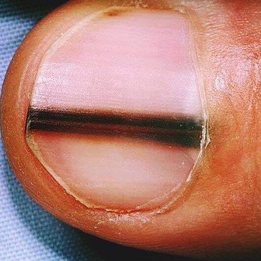 Tırnaklardaki koyu renk çizgiler hastalık habercisi