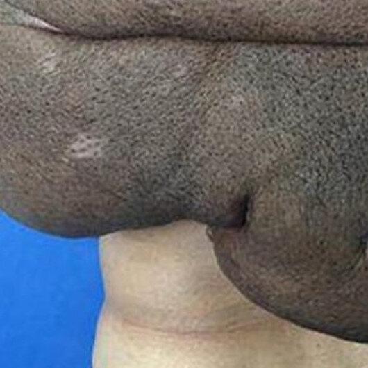 15 kiloluk tümör tüm sırtını sardı