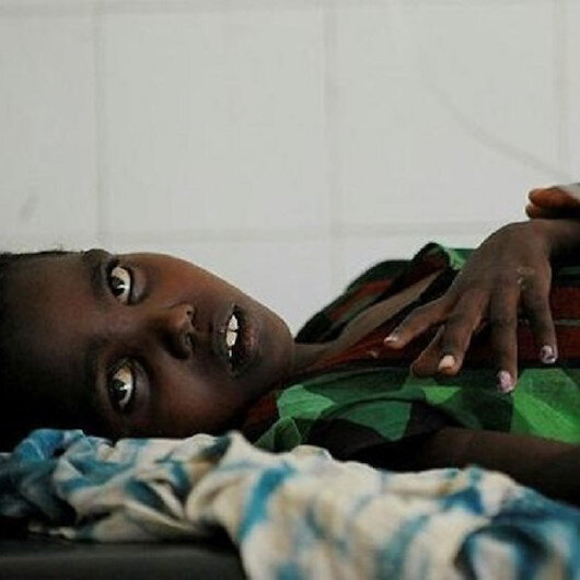 At least 525 people infected with cholera in Ethiopia