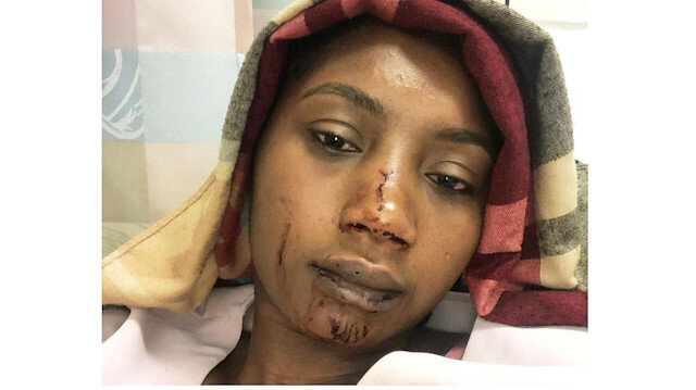 A Black Muslim engineer Fatoumata Camara who assaulted last month by a dozen young men and women in New York City.