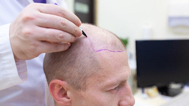 Saç ekiminde hastane dışında yapılan başarısız uygulamalar tehdit oluşturuyor.