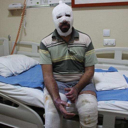 Ardahan'daki patlamada yaralı kurtulmuştu: Dehşet anlarını anlattı