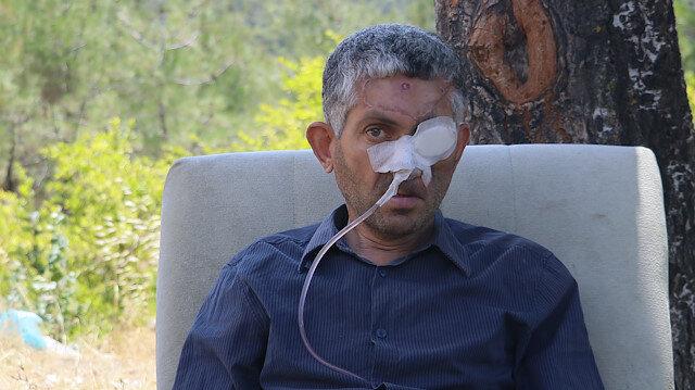 Dişini çektirdikten sonra gözünü kaybettiği iddia edilen hasta ağız kanseriymiş
