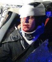 Minibüs ilekamyon çarpıştı: 8 yaralı