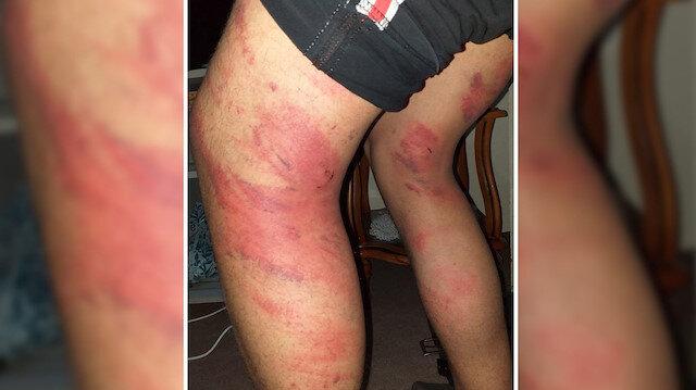 Bacaklarından yaralanan M.A.