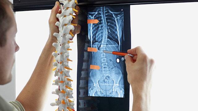 Skolyoz tedavisinde etkili egzersiz yöntemleri geliştirildi