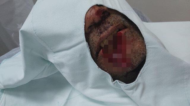 Kayınpederinin dudağını ısırarak parçalayan damat tutuklandı