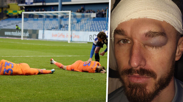 Takım arkadaşıyla çarpışan İngiliz futbolcunun görüntüsü şoke etti