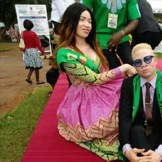 Albinos in Cameroon raise awareness through excellence