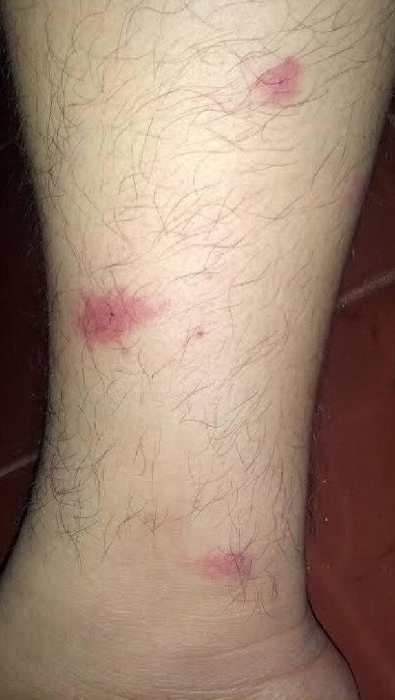 Asya Kaplanı sivrisineğinin ısırdığı yerlerde oluşan tahrişler...