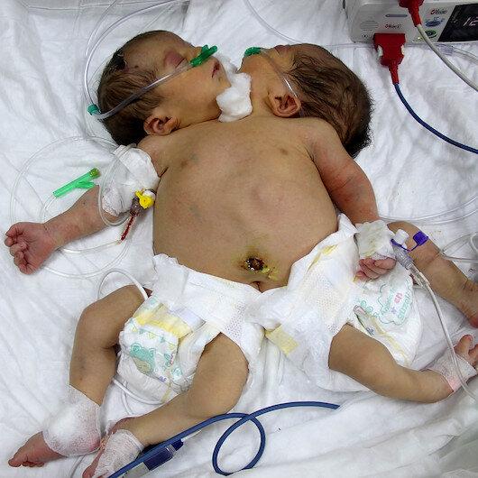 Tek kalple hayata tutunan 'siyam ikizleri' Türkiye'de şifa bulacak
