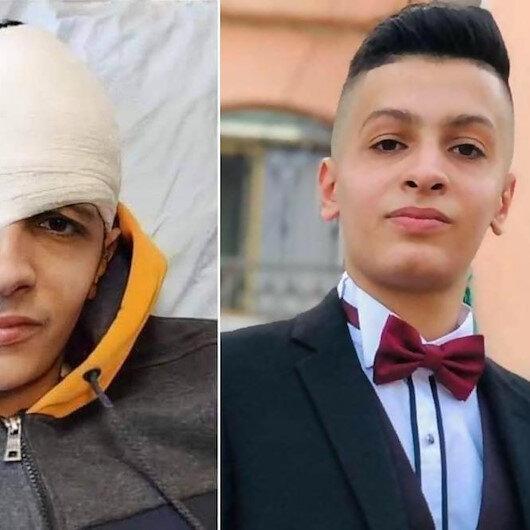 """""""عليان"""" .. طفل فلسطيني فقأت """"إسرائيل"""" عينه"""
