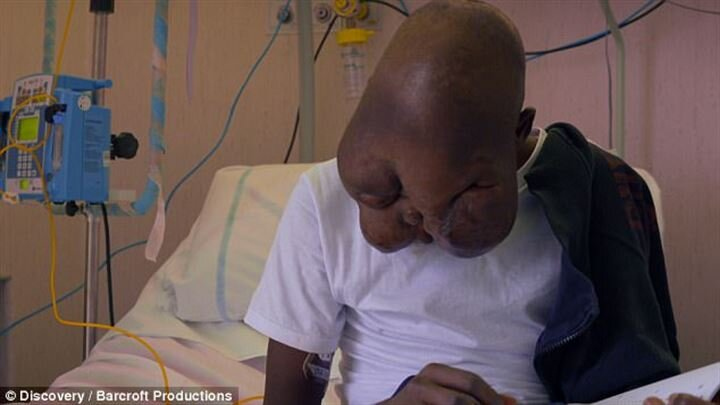 Mother abandons teenager suffering from cancer